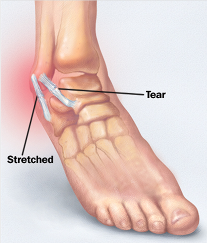 how to fix a sprained ankle